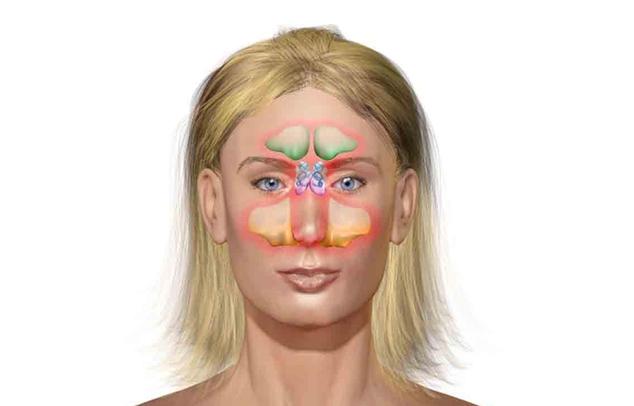 Helyes gyógymód a homloküreg-gyulladás kezelésére