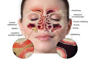 egy idő után az arcüregek egyetlen, fent lévő kijárata is begyullad, elzáródik.